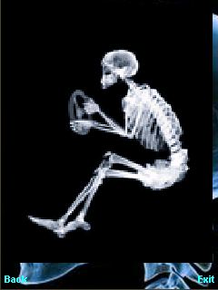 X-ray download how