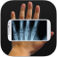 Image of Xray Body Scanner HD