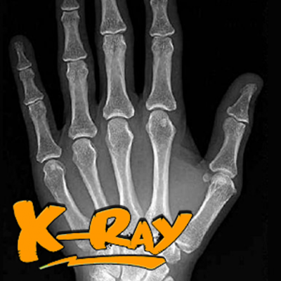 Download xray apps for Android